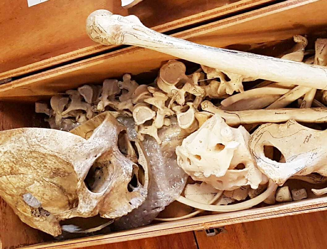 Human remains with a skull and bones